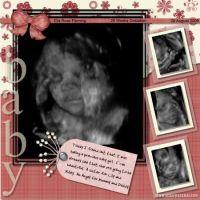 4D-Ultrasound-000-Page-1.jpg